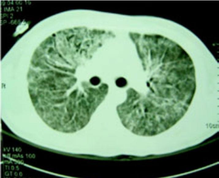 complicaciones pulmonares VIH